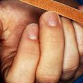 二枚爪は現状に不満があるサイン! 爪の状態でわかる心の状態
