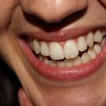 黄ばんだ歯は怠けた生活の証し! 白い歯でフレッシュに心機一転したい!