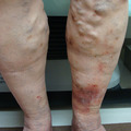 女性6人に1人がボコボコ足に……医師が警鐘、「重症むくみ&かゆみ」の危険信号