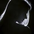33歳美人女性の顔に硫酸「すべてが灰色になった」 ― アシッドアタックの惨劇